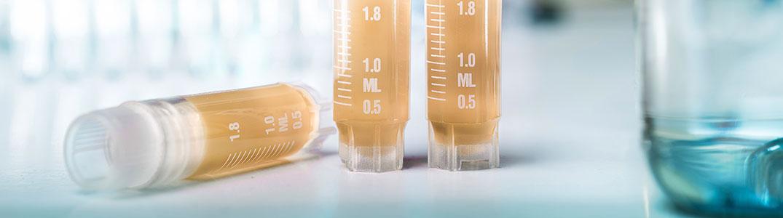 Dx Biosamples - Biospecimen Procurement